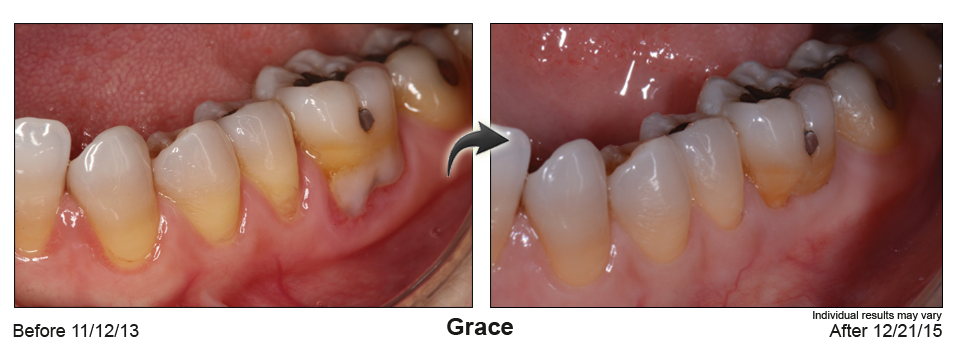 fix gum recession Wilmington Delaware