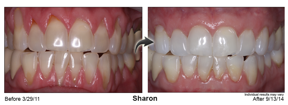 gum recession treatment Wilmington Delaware